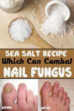 Sea Salt Recipe Which Can Combat Nail Fungus