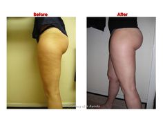Velashape is a proven and almost completely painless solution to cellulite http://www.lmaclinic.com/velashape.asp