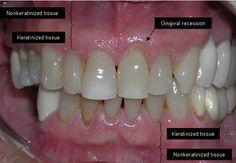 Zahnfleischrückgang kann ziemlich alarmierend sein. Es ist nicht nur schmerzhaft, es kann auch zu Taschen oder Lücken zwischen den Zähnen und dem Zahnfleisch führen, so dass sich schädliche Bakterien bilden können. LautWebMD, kann es zu schweren Schäden im Stützgewebe und in der Knochenstruktur der Zähne, sowie zu eventuellem Zahnverlust führen. Also, was bewirkt, dass sich …
