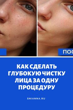 How to do a deep facial cleansing in one procedure. Even beauticians recommend Beauty Skin, Hair Beauty, Beauty Makeup Photography, Facial Cleansing, Life Hacks, Beauty Hacks, Hair Care, Health Fitness, Workout