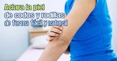 Remedios para blanquear la piel de codos y rodillas de forma natural