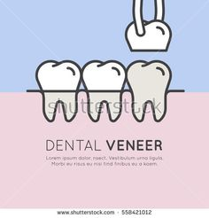 Isolated Vector Style Illustration Logo Badge or Dental Tooth Veneer Installation Process, Aesthetics, Orthodontist
