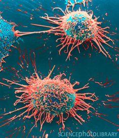 Células de cáncer de cuello uterino vistas con microscopio SEM y coloreadas.