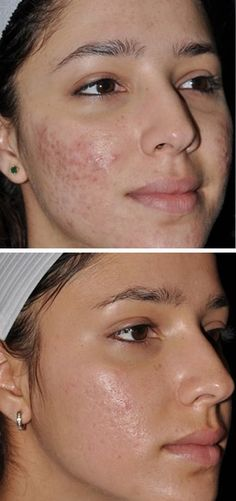 This Acne Scar Remover Cream is applicable for acne or pimple scars, insect bite marks, stretch marks and surgical scars. Scar Removal Cream, Acne Scar Removal, Pimple Scars, Acne Scars, Beauty Tips With Honey, Best Fake Eyelashes, Eyelash Brands, Natural Cough Remedies, How To Lighten Hair
