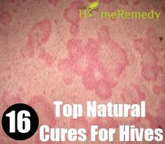Natural Cure For Hives Check more at http://www.healthyandsmooth.com/hives-relief/natural-cure-for-hives/