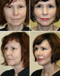 Even Out Facial Creases And Hoist Droopy Muscle With Facial Yoga Strengthening Massage Routines