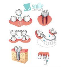 ¿Te faltan piezas dentales? Te mostramos qué fácil es poner un implante para recuperar la mejor versión de tu sonrisa. Consulta con nuestros Especialistas y te daremos una recomendación a la medida.