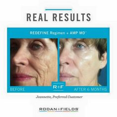 Rodan + Fields Redefine Regimen gives major results. accelerate results by with the Redefine AMP MD roller. 60 day money back guarantee. Redefine Regimen, Skin Care Regimen, Skin Care Tips, Rodan Fields Skin Care, Rodan And Fields Redefine, Best Anti Aging, Anti Aging Skin Care, Amp Md Roller, Rodan And Fields Consultant