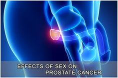 Besides serving a reproductive purpose, effects of #sex has been linked to some major benefits for us humans. It has shown to be beneficial for cardiovascular health, improve mood, and even aid losing weight. One question that has not been discussed before is the link between effects of sex and #prostate #cancer in men.  http://www.drelist.com/effects-of-sex