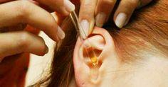 Thumb 2 gotas disso em seus ouvidos e 97% de sua audição recuperada! Mesmo pessoas de 80 a 90 podem se beneficiar desse remédio natural