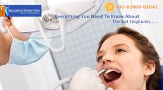 Everything yo need to know about #Dental Implants. #ToothCare