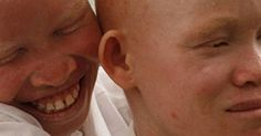 The Albino Charity, a charity that helps those with albinism in Africa. (The albinos in Tanzania are being hunted and killed for the sake of witch doctors and the rich, please help these children held in many compounds throughout Tanzania) Albinism, Witch Doctor, Genetics, Tanzania, Doctors, Charity, Africa, Romantic