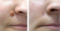 Elimina cualquier fibroma o verruga de la piel usando un solo ingrediente. Este método funciona en el 100% de los casos!