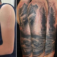 Scar cover-up