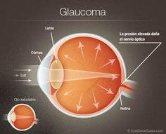 Todo Natural: Como Bajar la Presion del Glaucoma  Todo Natural.
