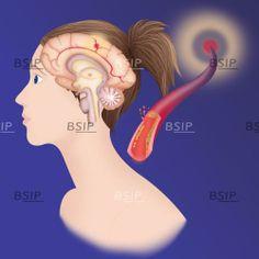 Depiction of an ischemic stroke, or cerebrovascular accident (CVA). © Caroline Arquevaux / BSIP