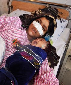 Photo: Hasan Sirdash/.Update: More details have emerged about the young woman who had her nose cut off by her husband in Afghanistan, The New York Times and the Afghanistan Independent Human Rights Commission report.  Reza Gul, 20, was attacked by her husband on Sunday after arguing with him over his