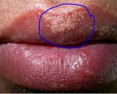 how to get rid of oil zits on lip line