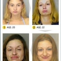 Most Shocking Drug Transformations Drugs, Sad, Posts, Funny, Image, Messages, Ha Ha, Hilarious, Entertaining