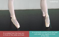 Sickling in Ballet: What, Why and How to Avoid It - To the Side