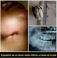 Expulsión de un tercer molar inferior a través de la piel: a propósito de un caso   OVI Dental
