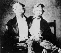 "The most famous set of conjoined twins were Chang and Eng, the men who originated the term ""Siamese Twins"". Eng and Chang were born in Siam (modern day Thailand) on May 11, 1811 to a Chinese father and half-Chinese, half-Malay mother. Thanks to their heritage, while growing up in Siam the boys were known as ""The Chinese Twins."