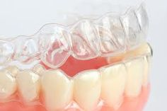 Invisalign invisible braces