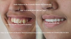 Smile makeovers by expert cosmetic dentist Dr Trivikram rao(Dr Vikram) in Bangalore. In simple words it means sculpting a better smile by changing the alignment, shape, color and texture of your existing teeth by modifying them with the help of ceramic/porcelain crowns/veneers. Visit : http://www.allsmilesdc.org/cosmetic-dentistry/ …#Smilemakeover #CosmeticDentisry