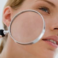 Holistic Blends Blog: Clues your skin may be giving you