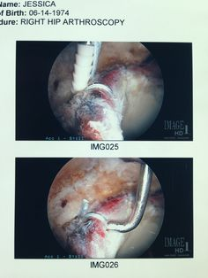 Labral tear repair with anchors