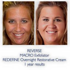 LOVE these results of fellow consultant Amanda's #transformationtuesday!! Real results or your money back - that is the Doctors promise. #agingbackwards #changingskin #changinglives #beautifulskin