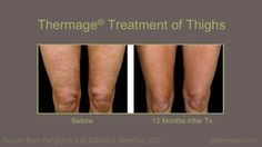 A Before and After of a Thermage skin tightening treatment of knee caps from real patients of Dr. Brian S. Biesman in Nashville, TN.