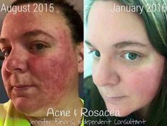 """LIFE CHANGING This is why I post about RF! This is what makes me so passionate about our products! I know they work! Fellow RF Consultant Jennifer Belvins knows it too... """"The before picture is from August '15 my Rosacea was taking over. I have fought it for the past almost 2 years. I have been on multiple prescribed medications that were very costly and obviously were not working and also an awful possible side effects. It hurt and it burned and I was just miserable!!! Shortly after this…"""