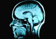 Estudo mostra que pornografia pode ser prejudicial ao cérebro