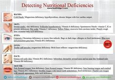 Detecting nutritional deficiencies #myhealthybliss #whattolookfor