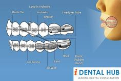 Braces and Brackets Help to Align Teeth Perfectly