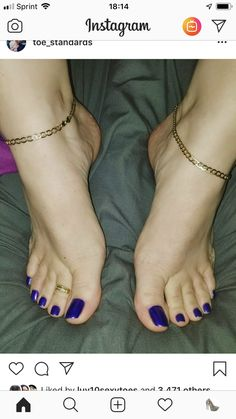 Our site is just for you, Perfect Cute Toes with Sexy Feet all in One Place. Pretty Toe Nails, Cute Toe Nails, Pretty Toes, Sexy Legs And Heels, Hot Heels, Pies Sexy, Feet Gallery, Nice Toes, Painted Toes