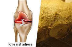 symptomen van artrose elimineren
