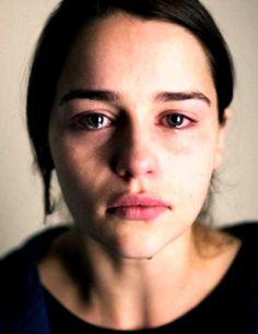 """""""Sus ojos rojos y derraman las lágrimas en la cara manchada en mi corazón y me…"""