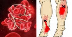 Knowing These Important Blood Clot Symptoms Can Save Your Life
