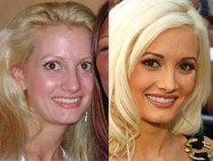 Holly Madison before and after breast implants, nose job plastic surgery. Once again, Holly Madison has found her way into our homes, this . Botox Before And After, Celebrities Before And After, Holly Madison, Celebrity Plastic Surgery, Under The Knife, Rhinoplasty, No Photoshop, Without Makeup, Combination Skin