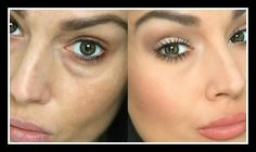 Makeup For Under Eye Bags Hemorrhoid Cream Has Weird Benefits For Under Eye Area. Makeup For Under Eye Bags Best Makeup For Undereye Circles According To Makeup Artists Allure. Makeup For Under Eye Bags How To Cover Dark Circles Under… Continue Reading → Covering Dark Circles, Dark Circles Under Eyes, Dark Under Eye, Concealer For Dark Circles, Under Eye Concealer, Under Eye Creases, Under Eye Makeup, Puffy Eyes, Droopy Eyes