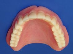 Dentures are false teeth made to replace teeth you have lost. Dentures can be complete or partial. Complete dentures cover your entire upper or lower jaw.