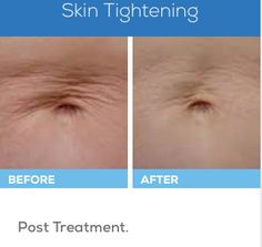 We can tighten the skin on your body with a minimally invasive, non-surgical process using an infrared light source.
