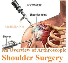 An Overview of Arthroscopic Shoulder Surgery ~ MediMiss http://jackiesalsareup.com/shoulder-pain-help