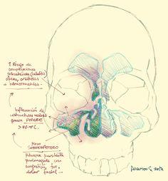 Posibles complicaciones de una sinusitis infecciosa.  Fuente: lachuletadeosler.com
