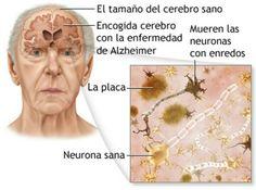 CAMBIOS COGNOSCITIVOS EN LA SENECTUD.  Laenfermedad del Alzheimer, también denominadademencia senil, es unaenfermedad neurodegenerativa que se manifiesta como deterioro cognitivo y trastornos conductuales. Se caracteriza en su forma típica por una pérdida de la memoria inmediata y de otras capacidades mentales, a medida que mueren las células nerviosas y se atrofian diferentes zonas del cerebro. La enfermedad suele tener una duración media aproximada después del diagnóstico de 10 años…