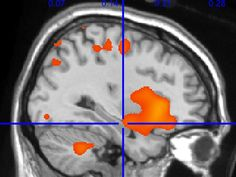 This is your brain on exercise - Vitals