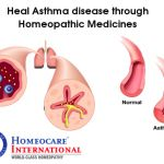 Asthma is a leading cause of diffuse airway inflammation influenced by a variety of reasons. It is caused due to strong genetic and environmental factors. Homeopathic approach working with the whole person can control asthma. Homeopathic remedies have a highly positive effect on an asthma sufferer at Homeocare. Contact Homeocare International and free from all ailments without any fatal effects.