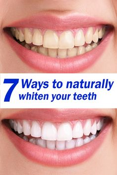 Some methods of whitening teeth involve sticking yucky chemicals into the mouth, a lot of people think twice as a result. It can also be expensive. There are alternatives though. Here are 7 ways to naturally whiten your teeth at home! http://upcominghealth.com/7-ways-naturally-whiten-teeth/